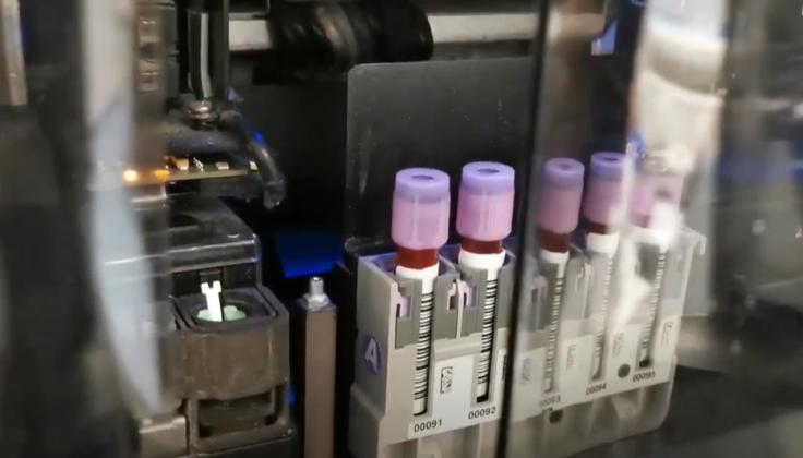 Santaros klinikos tirs rūpestį keliančias atmainas kartu su kitomis pasaulio laboratorijomis