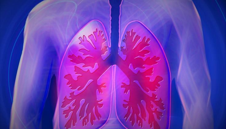 Gydytojai pulmonologai pastebi daugėjant užleistų plaučių ligų atvejų