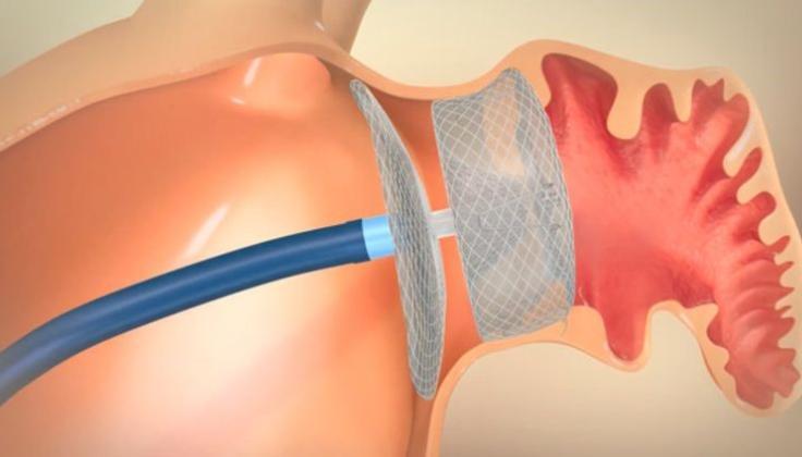 Santaros žinios: naujos technologijos leidžia operuoti širdį stebint trimatėje erdvėje