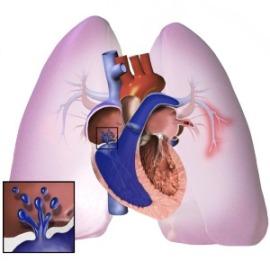 Pulmonary_Hypertension-e8c3b23ea6e7957764b00c78f8112877.jpg